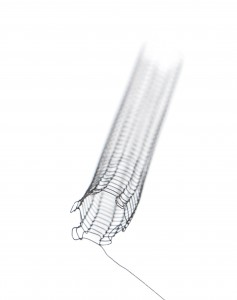 the Unravelling Stent